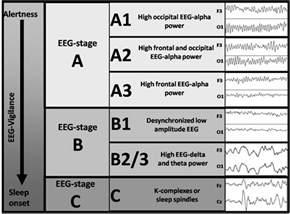 Normal EEG Waves Interpretation