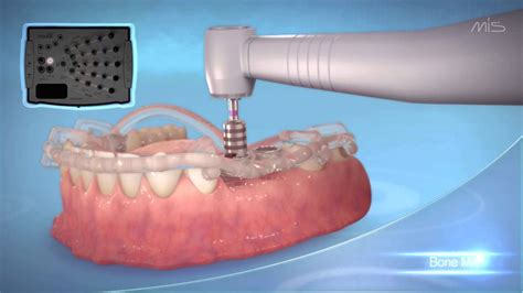 Mis Implants Mguide- Guided Implant Placement Procedure
