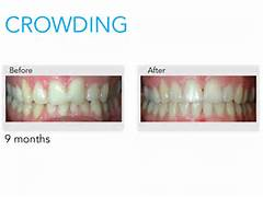 Before And After Invisalign Crowding Ask us about invisalign   Invisalign Before And After Severe Crowding