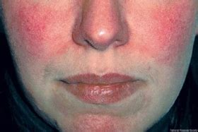 rosacea natürlich behandeln rosacea und akne homoeopathie sissach liestal basel olten bern z 252 rich luzern