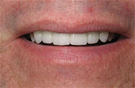 dental crowns caps types cost risks