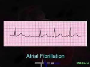EKG Rhythm Interpretation