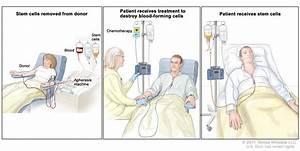 Childhood Acute Lymphoblastic Leukemia Treatment  Pdq