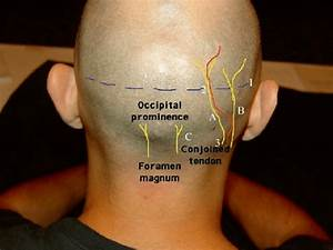 4 Surface Anatomy Of The Occipital Nerves  A Greater