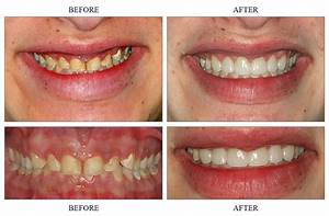 Before & After Pictures - Southfield Dentist | Family and ...