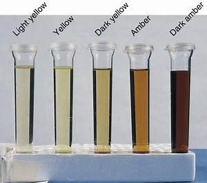 Blood Test Tube Color Chart Urinalysis Nurse Key