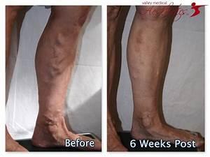 22 best EVLT Varicose Vein Treatment Results images on ...