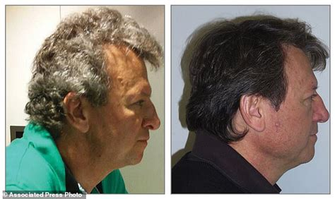 Hair Turning Brown by New Cancer Drugs Turn Patients Gray Hair Brown Daily