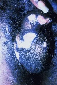 Herpes Simplex Viruses  Hsv  Images