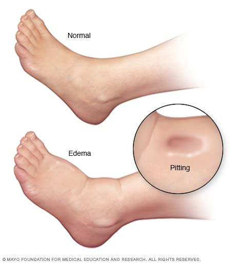 edema  foot  ankle mayo clinic