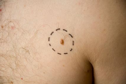 chambre implantable intervention may increase skin cancer diagnosis in