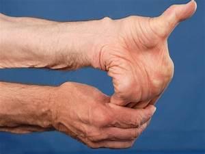 Pijn in spieren en gewrichten vermoeidheid
