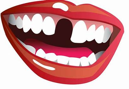 Mouth Smile Clipart Transparent Teeth Tooth Open