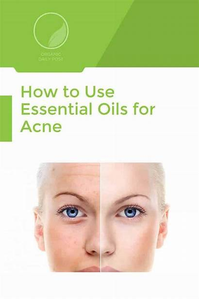Acne Oils Essential Use Remedies Organicdailypost Natural