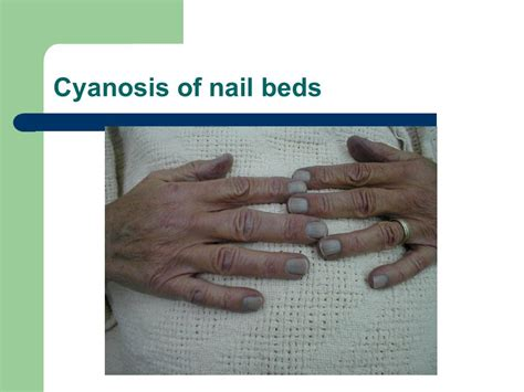 cyanotic nail beds physical assessment the ppt