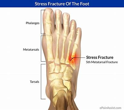 Fracture Stress Foot Bone Fractures Symptoms Treatment