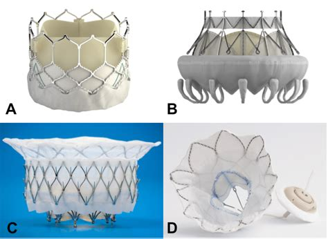 Transcatheter Mitral Valve Replacement Therapies ...