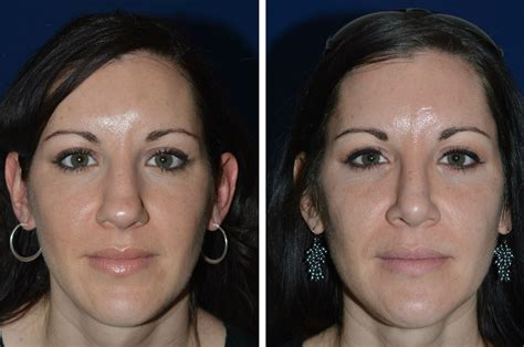 Healing After A Rhinoplasty Care Tips, Recovery Timeline