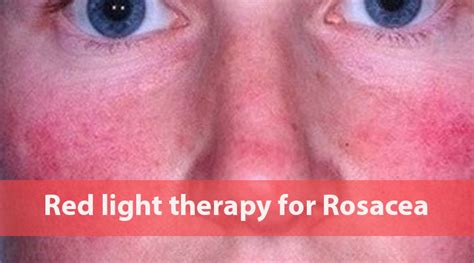 light therapy for anxiety red light therapy for rosacea a brief guide