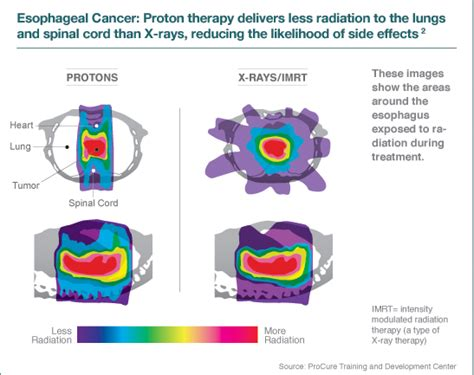What Is Proton Therapy For Cancer by Proton Therapy Treatment For Safely Treating Gi Tumors