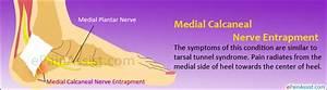 Medial Calcaneal Nerve Entrapment|Symptoms|Treatment-Rest ...