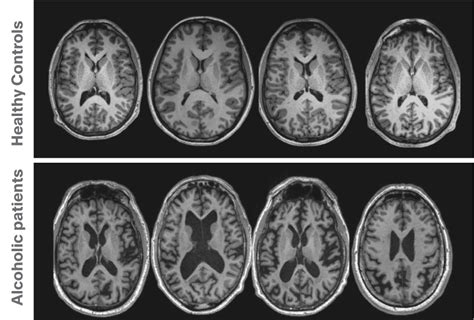 brain imaging  psychiatrists part  structural