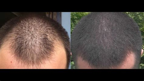 1 year minoxidil hair regrowth results, before and after