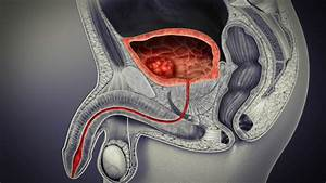 Bladder Cancer  Types  Symptoms  Causes  And Treatment