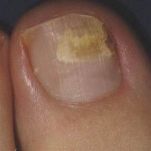 Fungal Nail Infections. Causes, symptoms, treatment Fungal ...