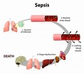 News - sTREM-1 predicts ICU and 28-day mortality in cancer ...