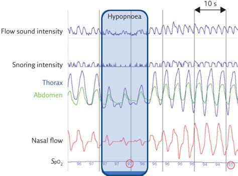 tracheal sounds   diagnosis  sleep apnoea european respiratory society