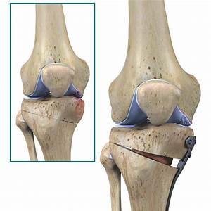 Knee Osteotomy Surgery Procedure   Arthritis-Health