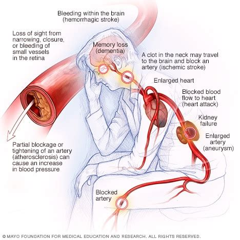 high blood pressure dangers hypertensions effects