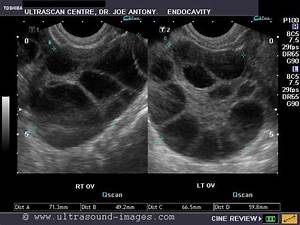 ovarian cancer ultrasound images Gallery