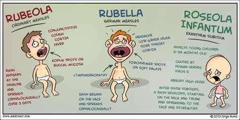 Roseola Rubella and Rubeola