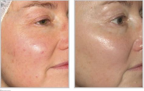 photofacial bbl laser treatment in cincinnati call us today