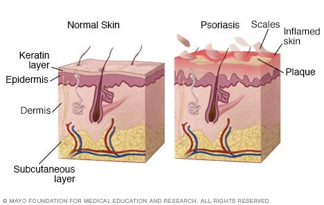 The best shampoo for psoriasis