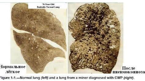 pneumokoniose wikipedia