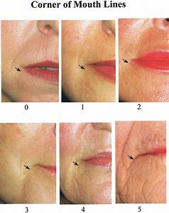 Wrinkle Assessment Scale Of Corner Of The Mouth Lines