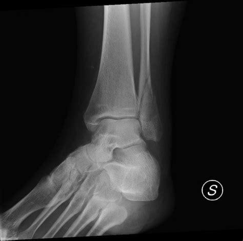 dolore interno braccio sinistro frattura malleolo peroneale composta o scomposta