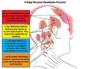 Tension headaches usually affect both sides of the head and last from ... Tension-Type Headache