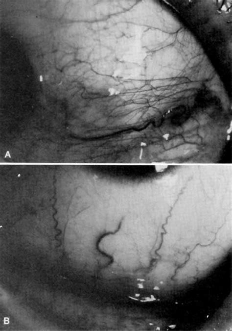 Conjunctivitis medicamentosa - Journal of Allergy and