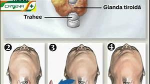 Guşa nodulară (nodulii tiroidieni simptome, diagnostic