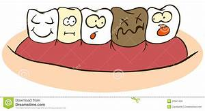 Rotten Teeth Clipart - Clipart Suggest