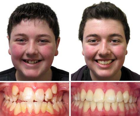 rancho cucamonga orthodontist braces invisalign