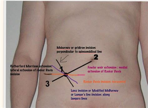 Know all different incisions for open appendectomy? Try