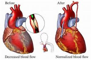 Coronary Artery Bypass Grafting - What It Is, Reasons for It, After ... Coronary Artery Bypass Graft
