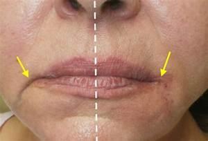 Corner of the Mouth Filler - Derma Medical