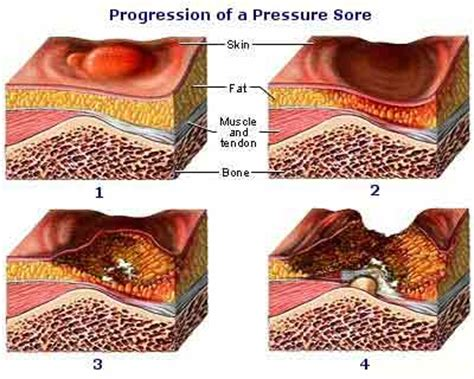 what is a bed sore skindisorders6 decubitus ulcers pressure sores