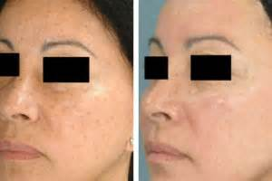 laser light skin clinic laser light skin treatment uk skin rejuvenation